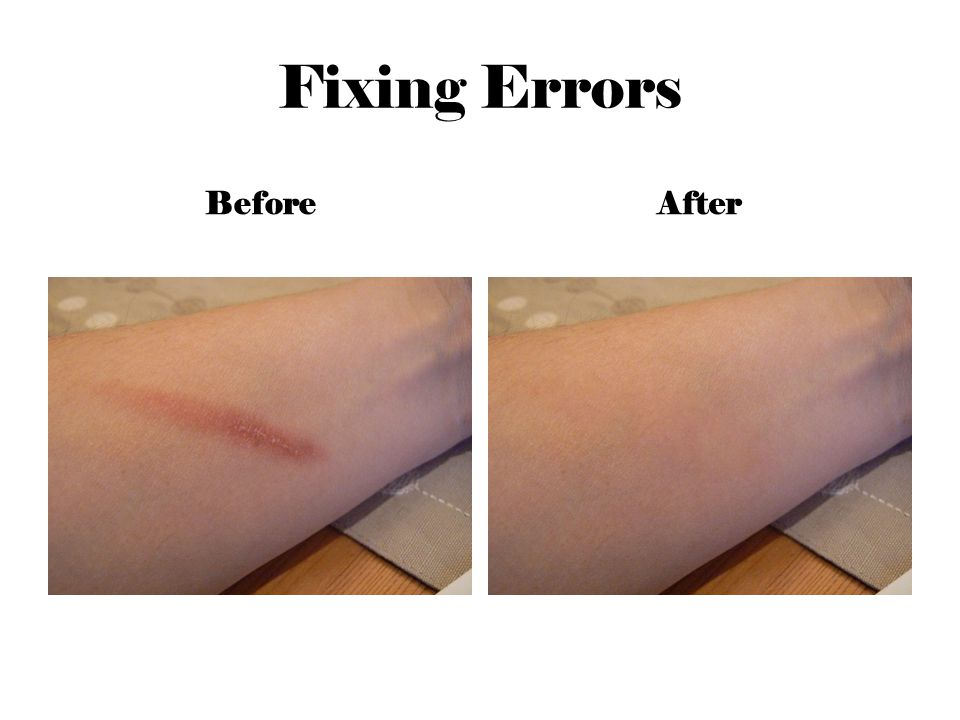 Fixing Errors BeforeAfter