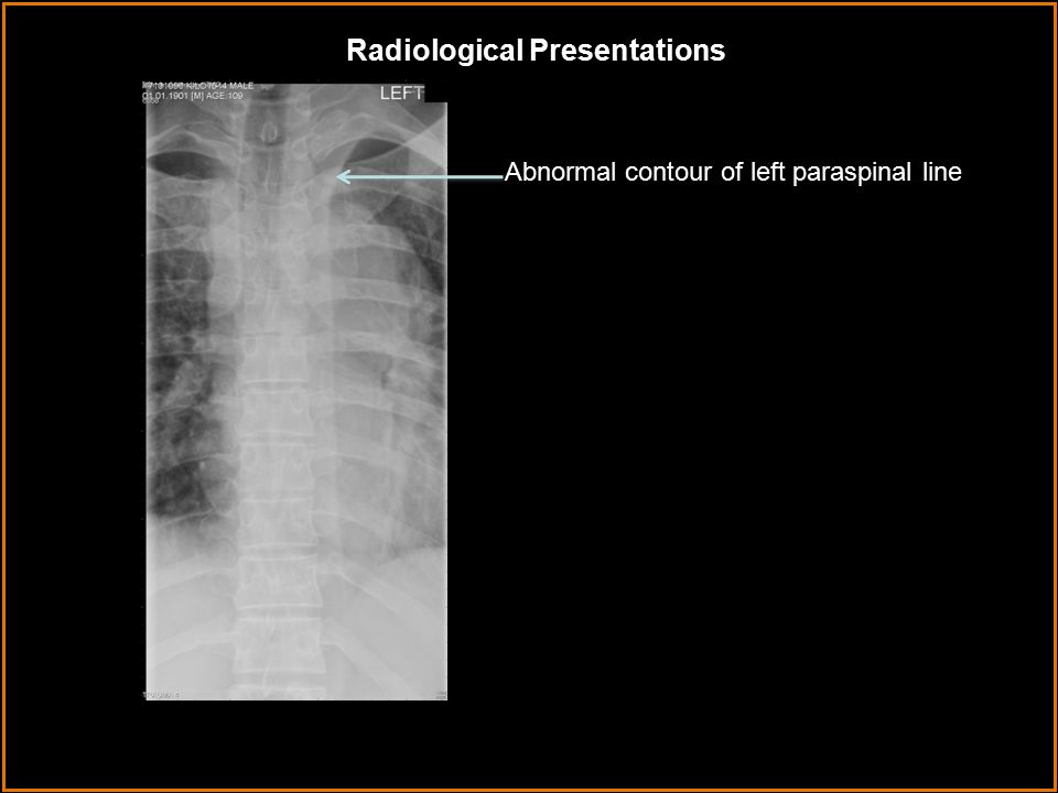 Radiological Presentations Abnormal contour of left paraspinal line