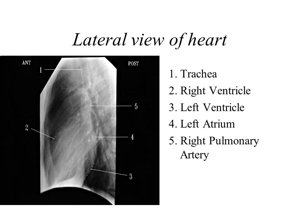 1.Trachea 2. Right Ventricle 3. Left Ventricle 4.