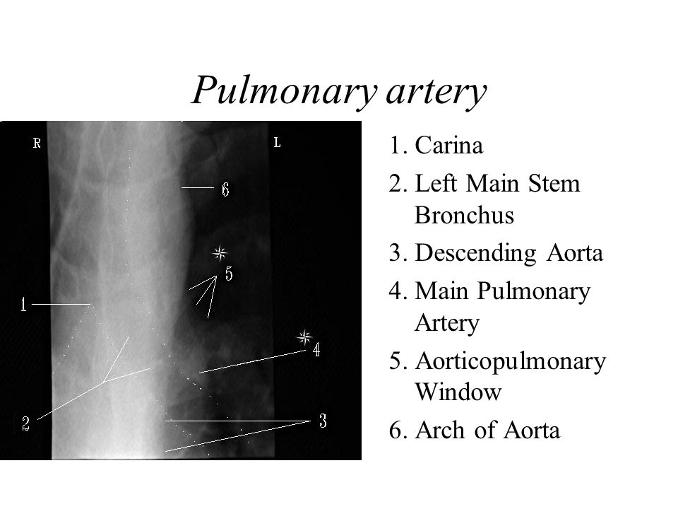 Pulmonary artery 1.Carina 2. Left Main Stem Bronchus 3.