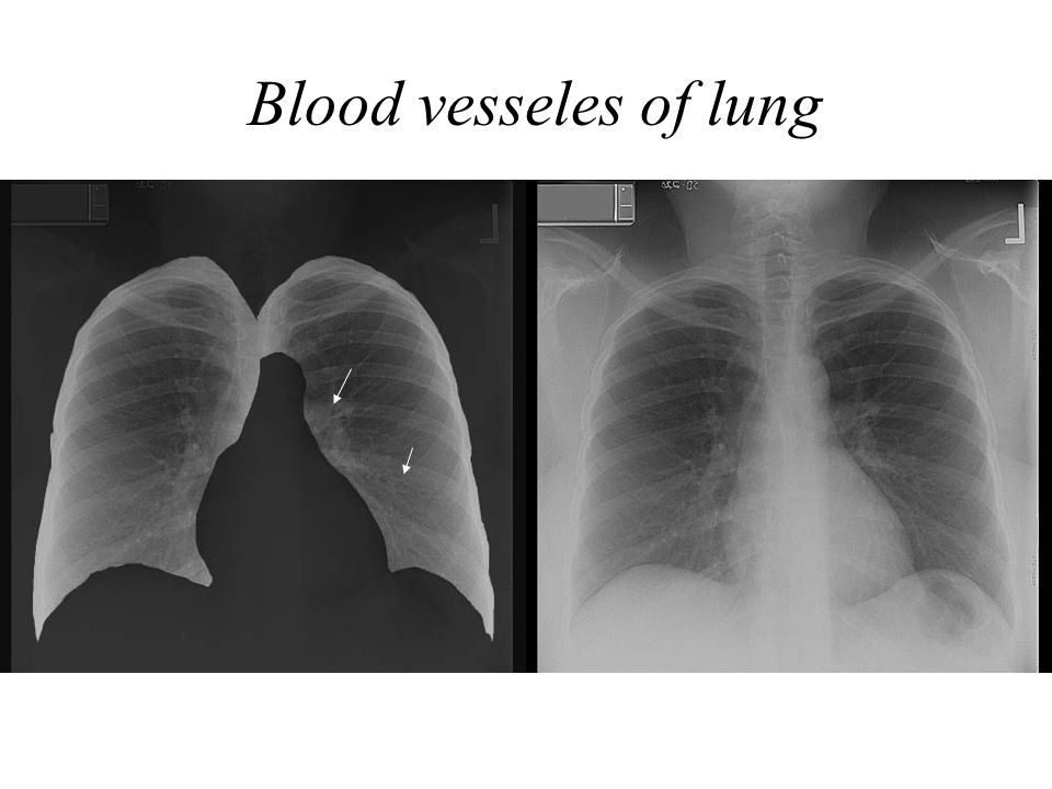 Blood vesseles of lung