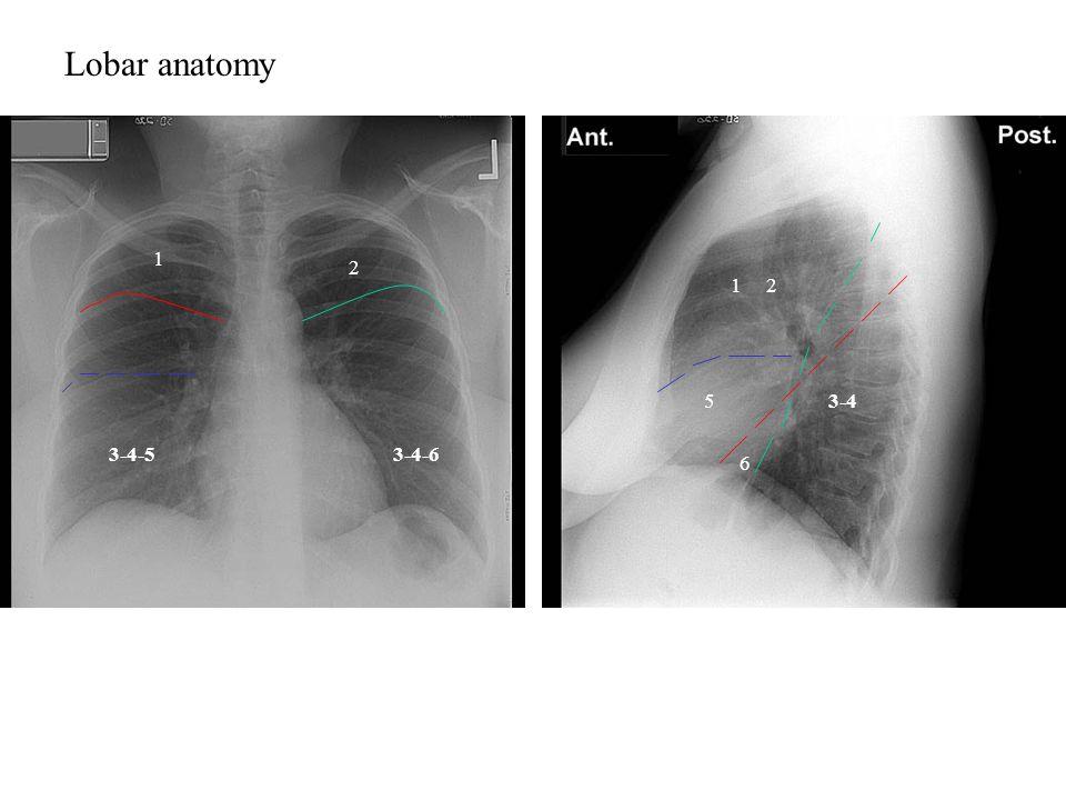 Lobar anatomy 1 2 12 3-4-5 3-45 3-4-6 6