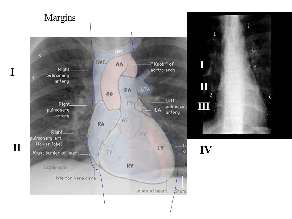 I II IV I II III Margins