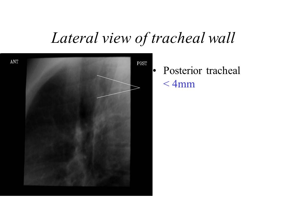 Lateral view of tracheal wall Posterior tracheal < 4mm