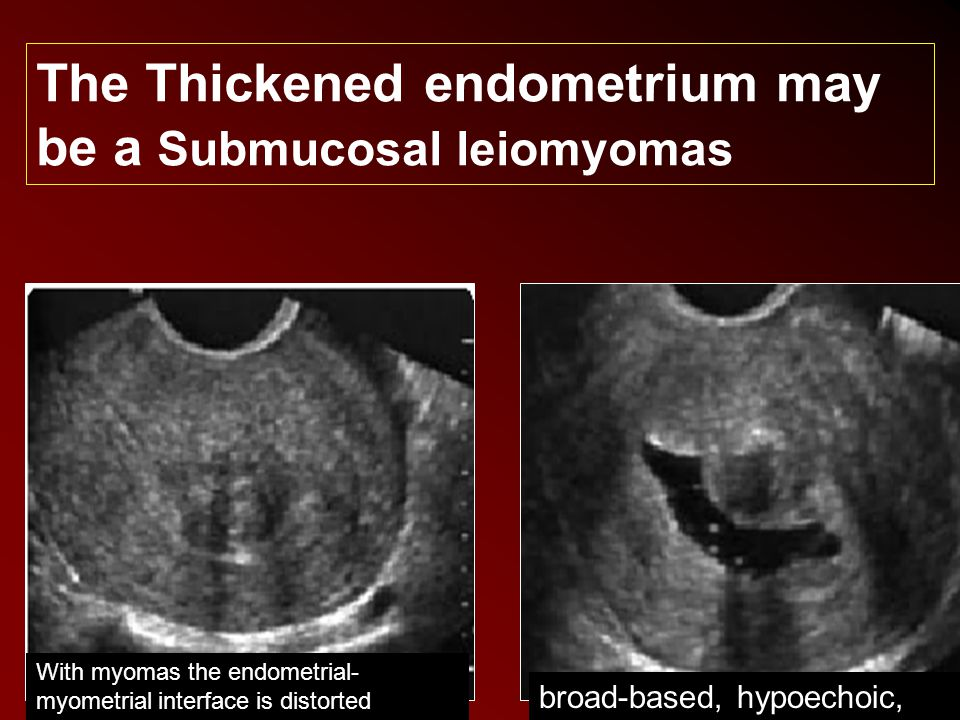 broad-based, hypoechoic, With myomas the endometrial- myometrial interface is distorted The Thickened endometrium may be a Submucosal leiomyomas