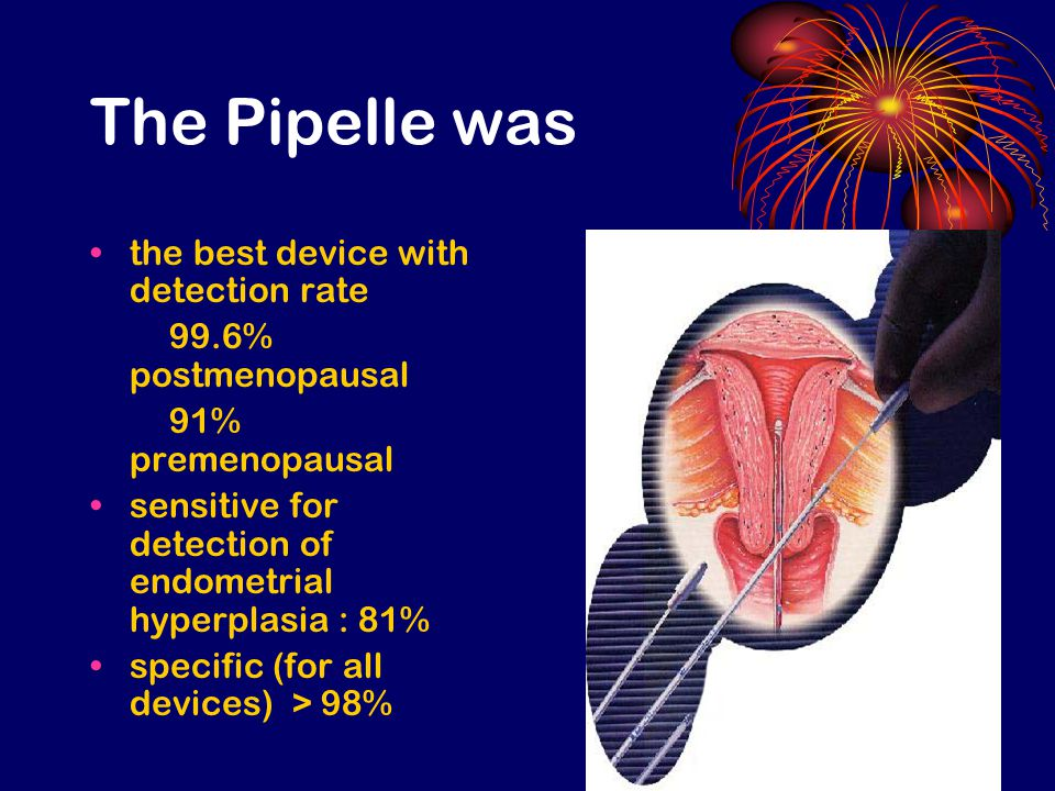 The Pipelle was the best device with detection rate 99.6% postmenopausal 91% premenopausal sensitive for detection of endometrial hyperplasia : 81% specific (for all devices) > 98%