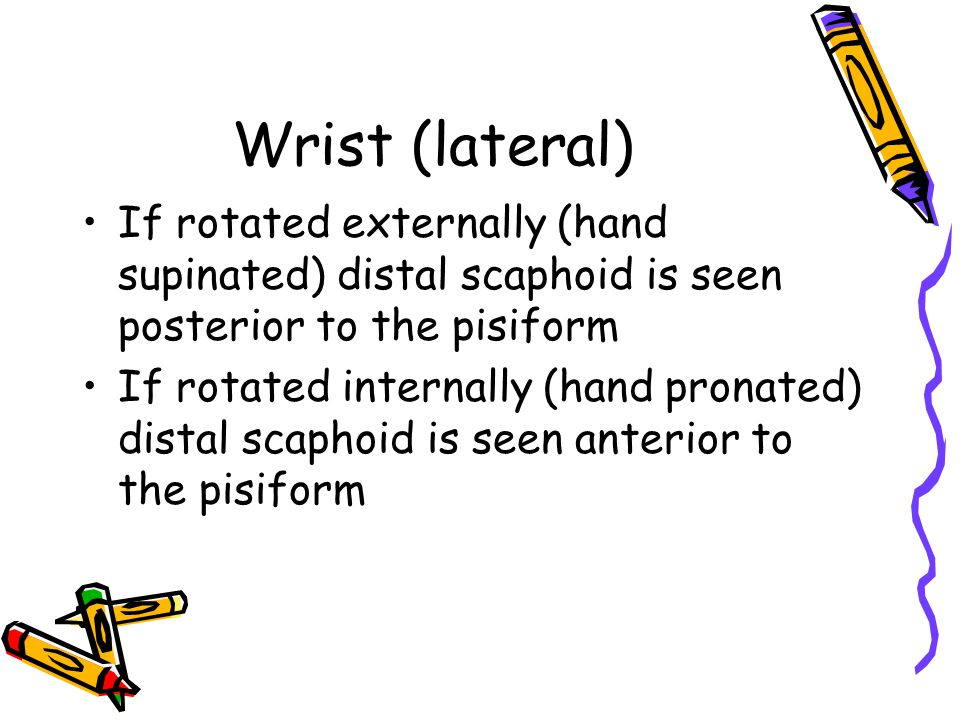 Wrist (lateral) If rotated externally (hand supinated) distal scaphoid is seen posterior to the pisiform If rotated internally (hand pronated) distal