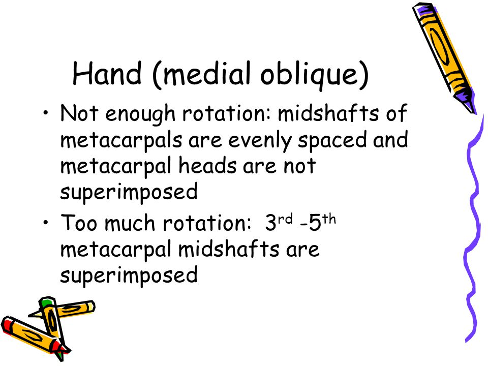 Hand ( medial oblique) .Long axes of 3 rd digit and metacarpal aligned .