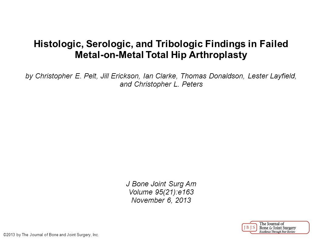 Histologic, Serologic, and Tribologic Findings in Failed Metal-on-Metal Total Hip Arthroplasty by Christopher E.