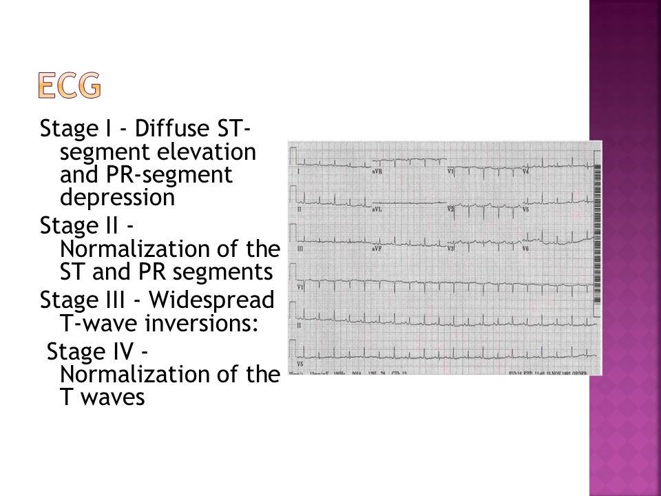 Stage I - Diffuse ST- segment elevation and PR-segment depression Stage II - Normalization of the ST and PR segments Stage III - Widespread T-wave inv