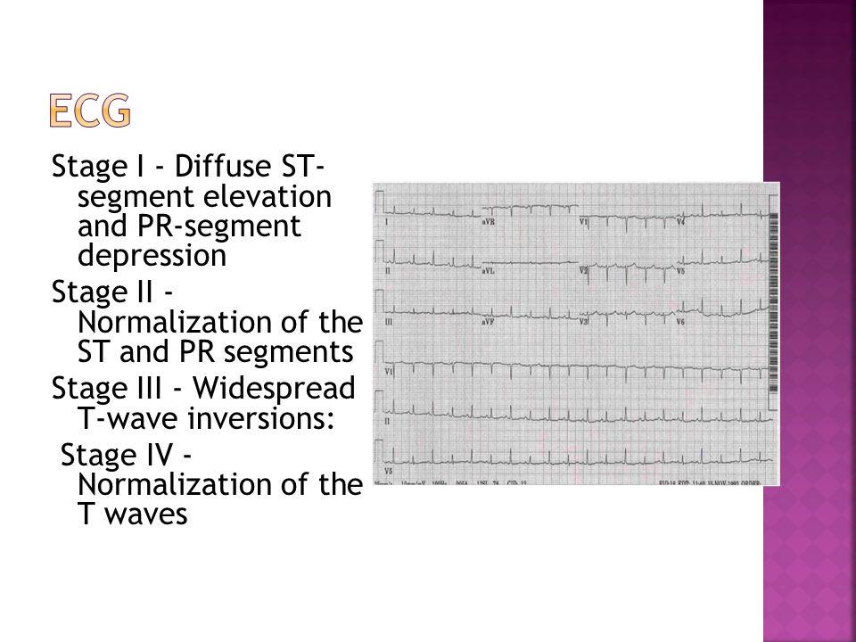  Enlarged cardiac silhouette (water- bottle heart)  Pericardial fat stripe.