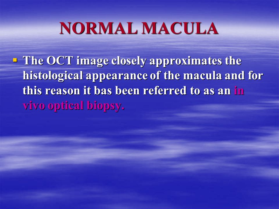 NORMAL MACULA  The OCT image closely approximates the histological appearance of the macula and for this reason it bas been referred to as an in vivo optical biopsy.