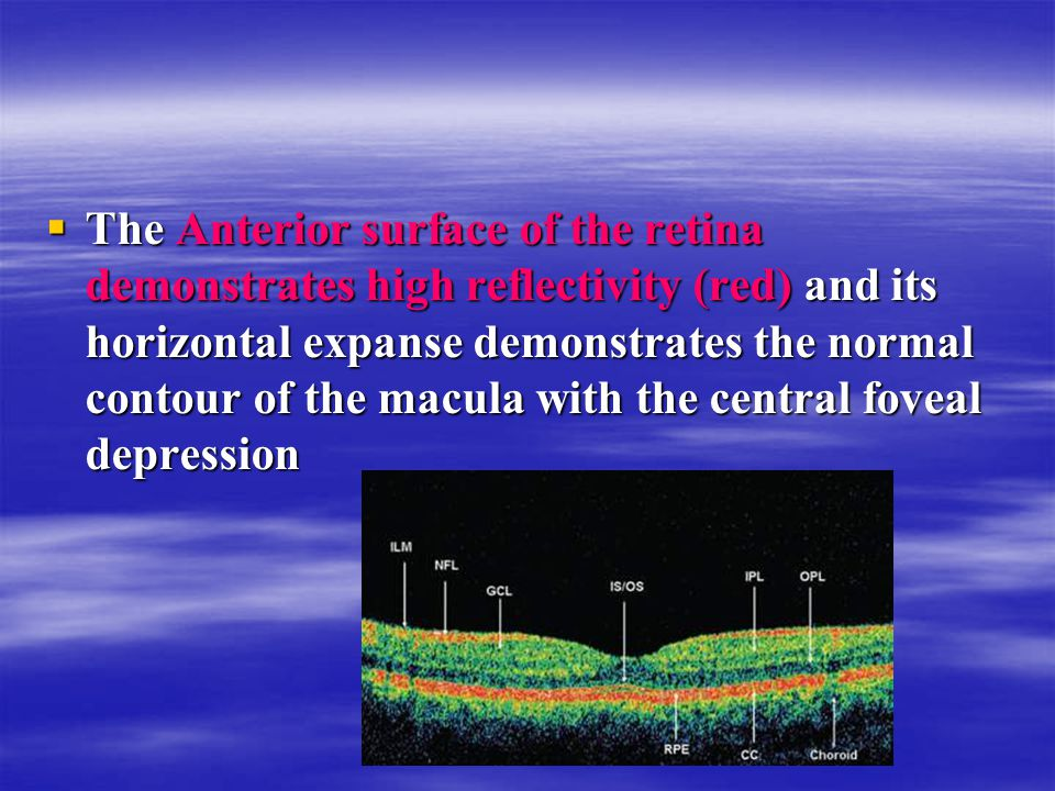  The Anterior surface of the retina demonstrates high reflectivity (red) and its horizontal expanse demonstrates the normal contour of the macula wit