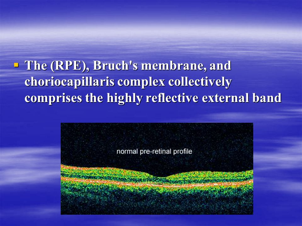  The (RPE), Bruch s membrane, and choriocapillaris complex collectively comprises the highly reflective external band