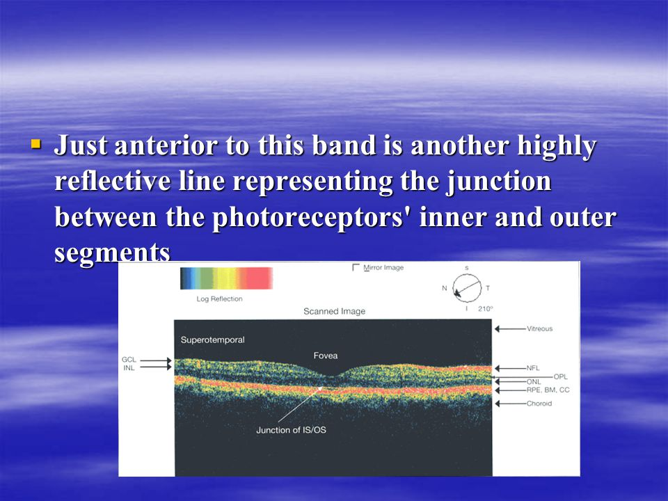  Just anterior to this band is another highly reflective line representing the junction between the photoreceptors' inner and outer segments