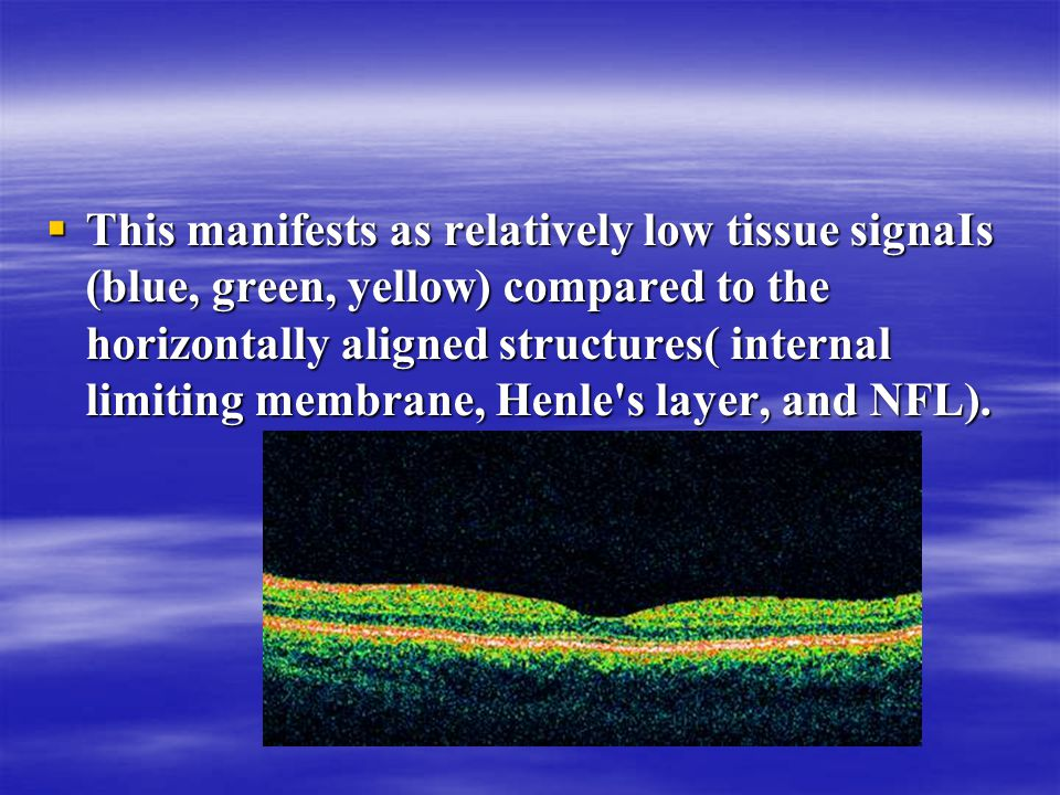  This manifests as relatively low tissue signaIs (blue, green, yellow) compared to the horizontally aligned structures( internal limiting membrane, Henle s layer, and NFL).