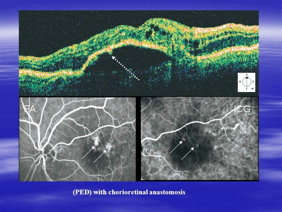 (PED) with chorioretinal anastomosis