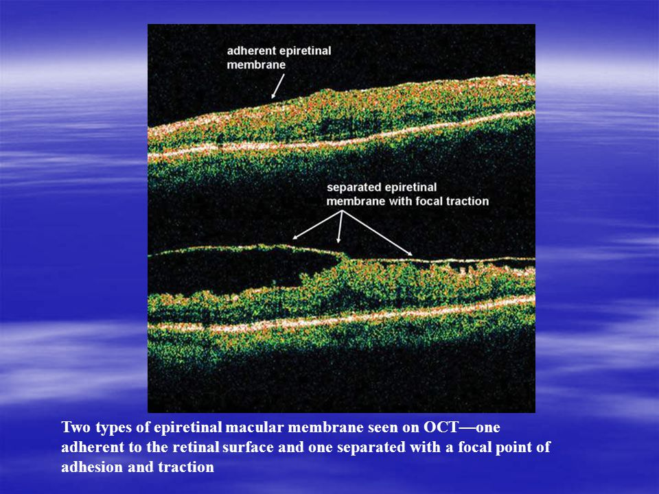 Two types of epiretinal macular membrane seen on OCT—one adherent to the retinal surface and one separated with a focal point of adhesion and traction