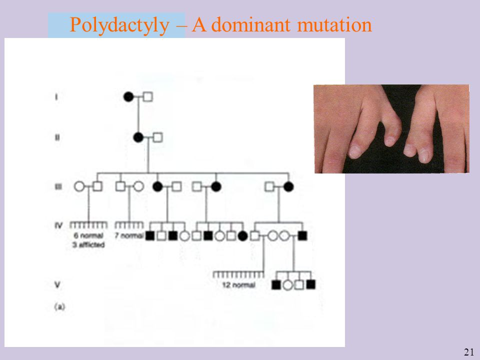 21 Polydactyly – A dominant mutation