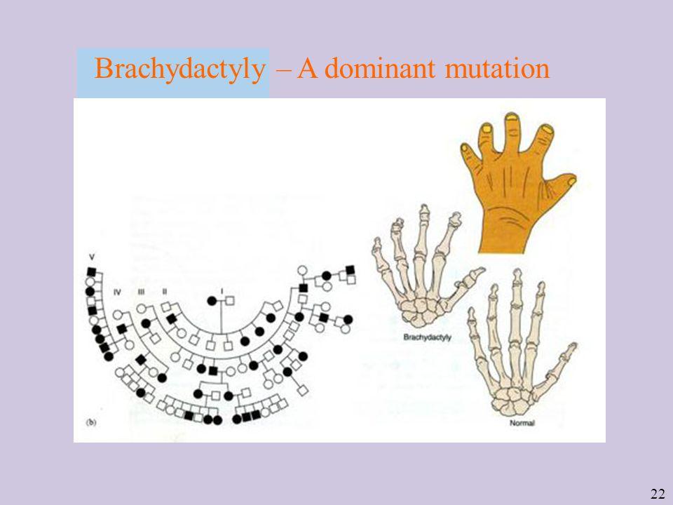 22 Brachydactyly – A dominant mutation