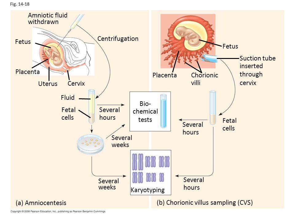 Fig. 14-18 Amniotic fluid withdrawn Fetus Placenta Uterus Cervix Centrifugation Fluid Fetal cells Several hours Several weeks Several weeks (a) Amnioc
