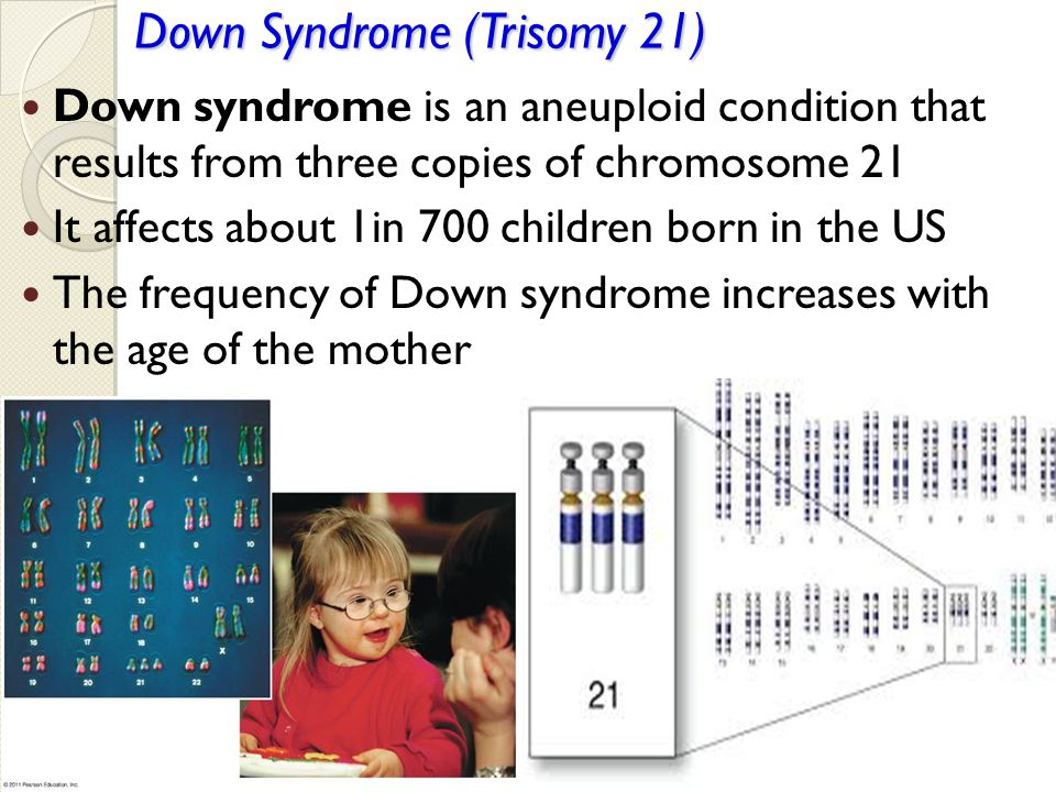 Down Syndrome (Trisomy 21) Down syndrome is an aneuploid condition that results from three copies of chromosome 21 It affects about 1in 700 children b