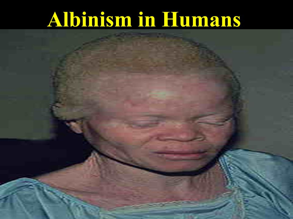 Albinism in Humans