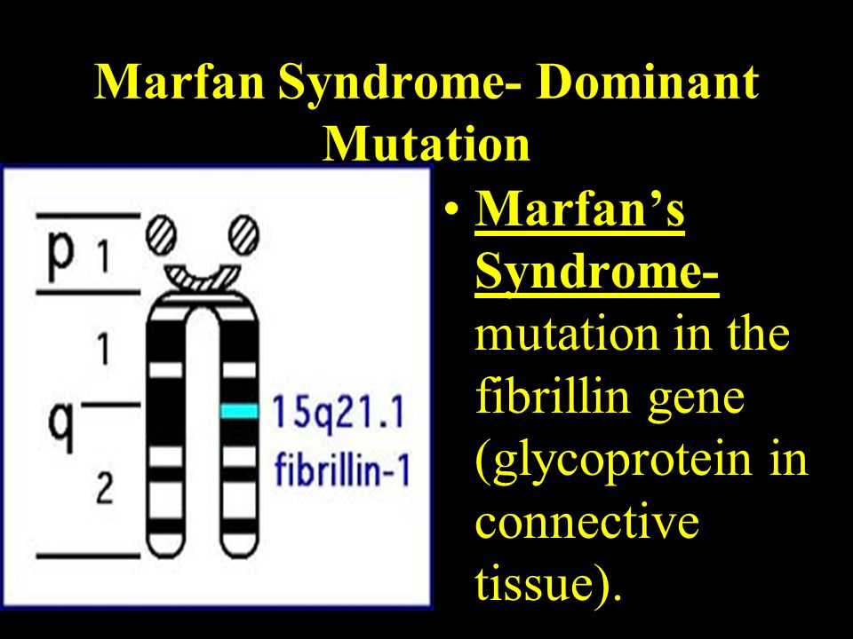 Marfan Syndrome- Dominant Mutation Marfan's Syndrome- mutation in the fibrillin gene (glycoprotein in connective tissue).