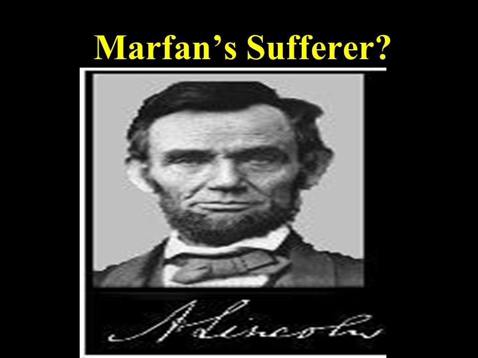 Marfan's Sufferer
