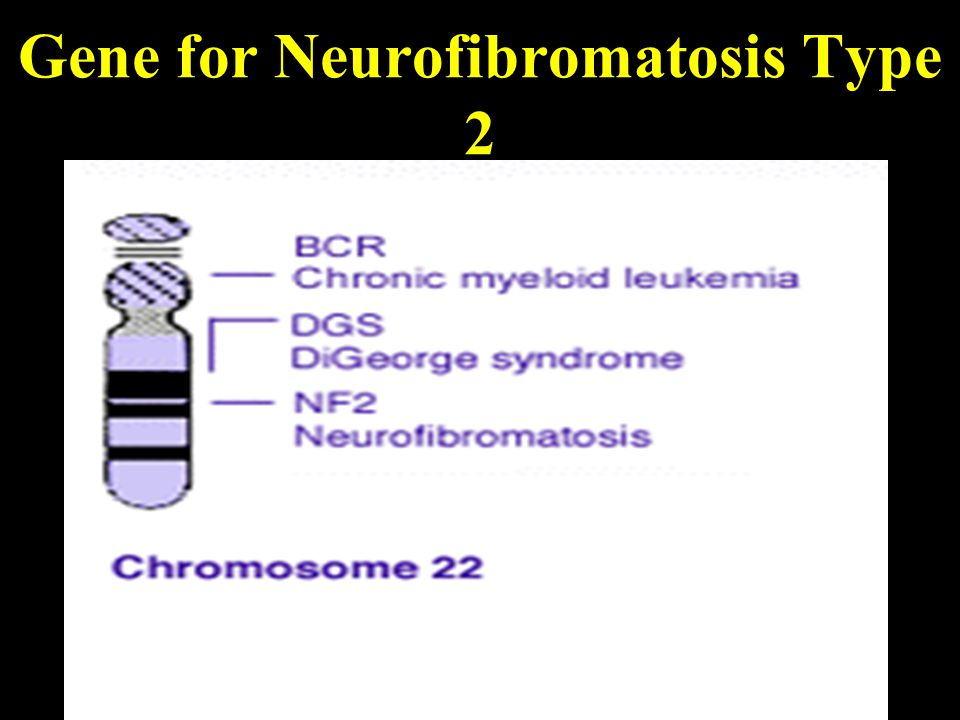Gene for Neurofibromatosis Type 2