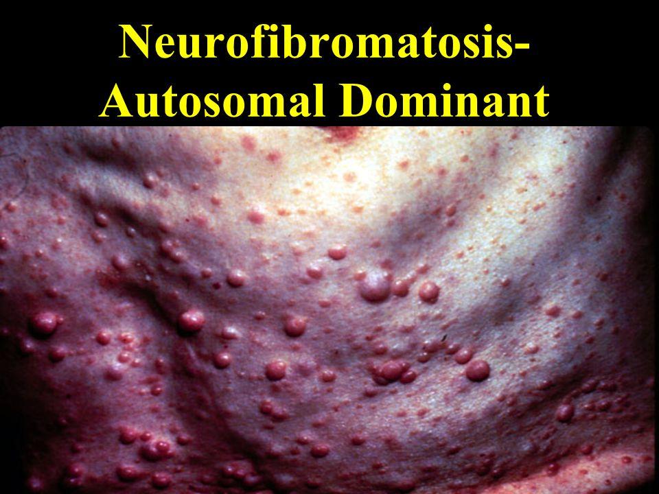 Neurofibromatosis- Autosomal Dominant
