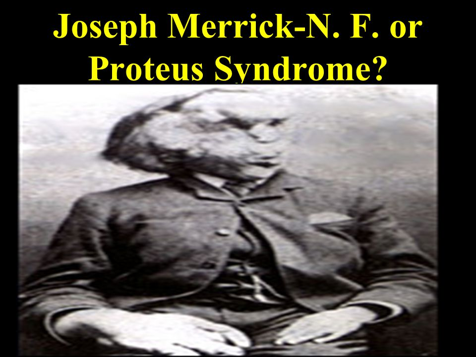 Joseph Merrick-N. F. or Proteus Syndrome