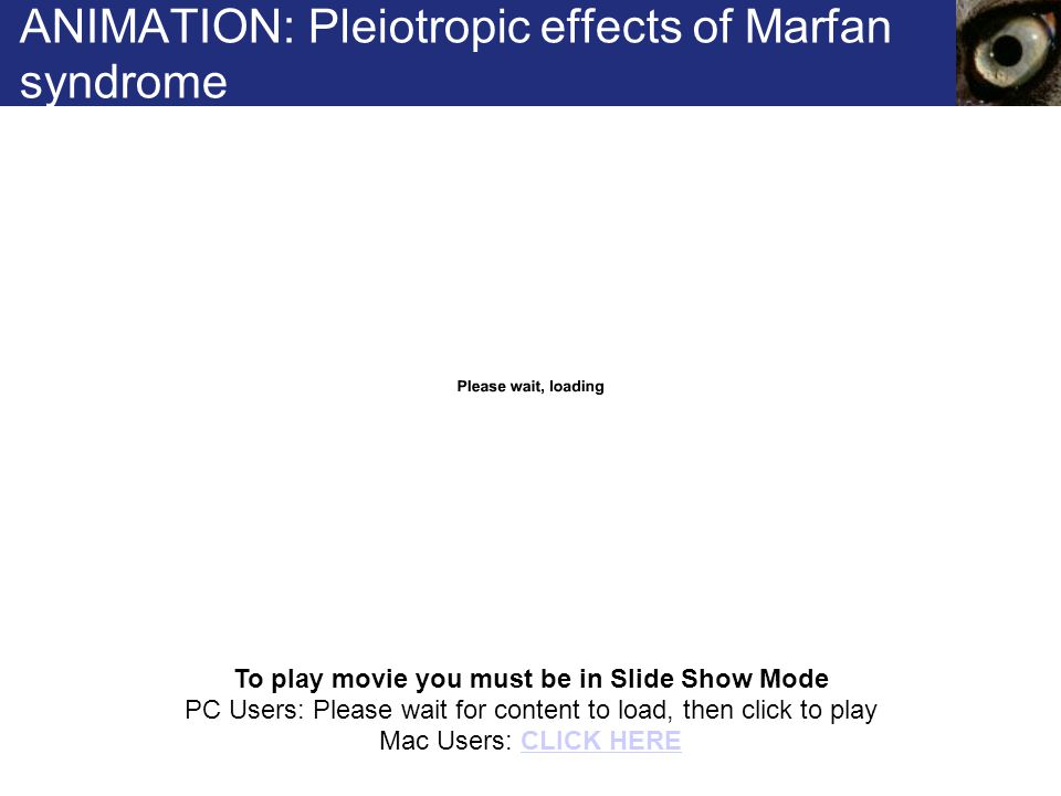 ANIMATION: Pleiotropic effects of Marfan syndrome To play movie you must be in Slide Show Mode PC Users: Please wait for content to load, then click to play Mac Users: CLICK HERECLICK HERE