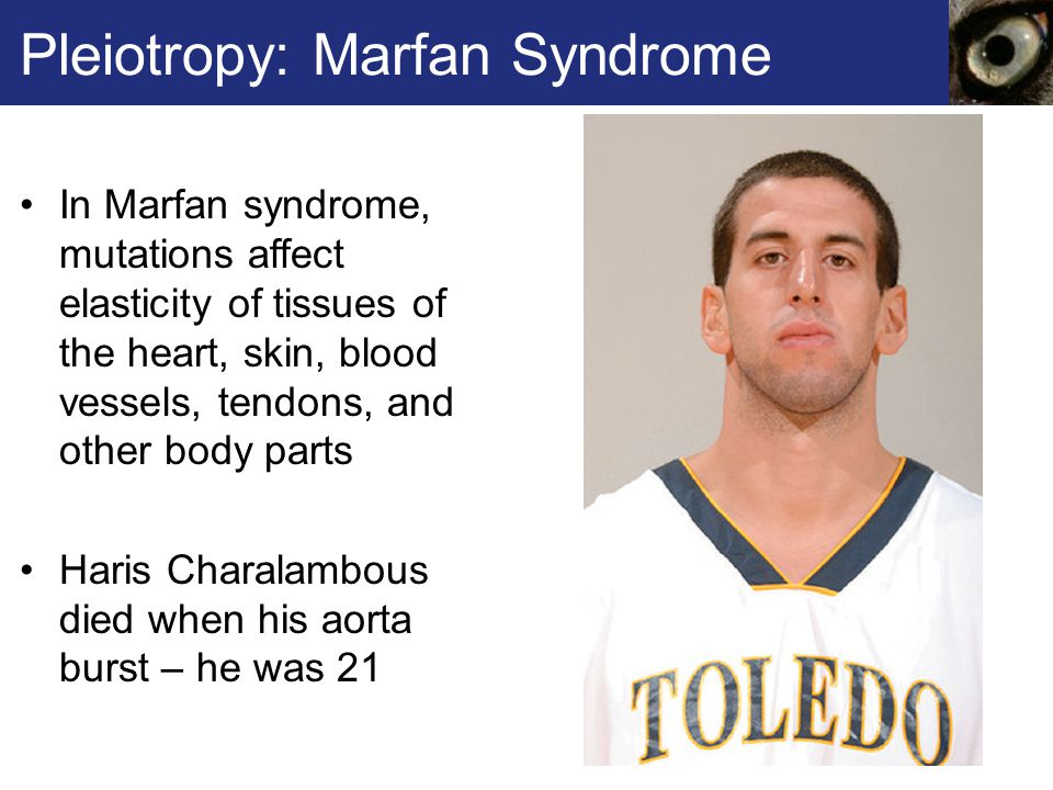 Pleiotropy: Marfan Syndrome In Marfan syndrome, mutations affect elasticity of tissues of the heart, skin, blood vessels, tendons, and other body part