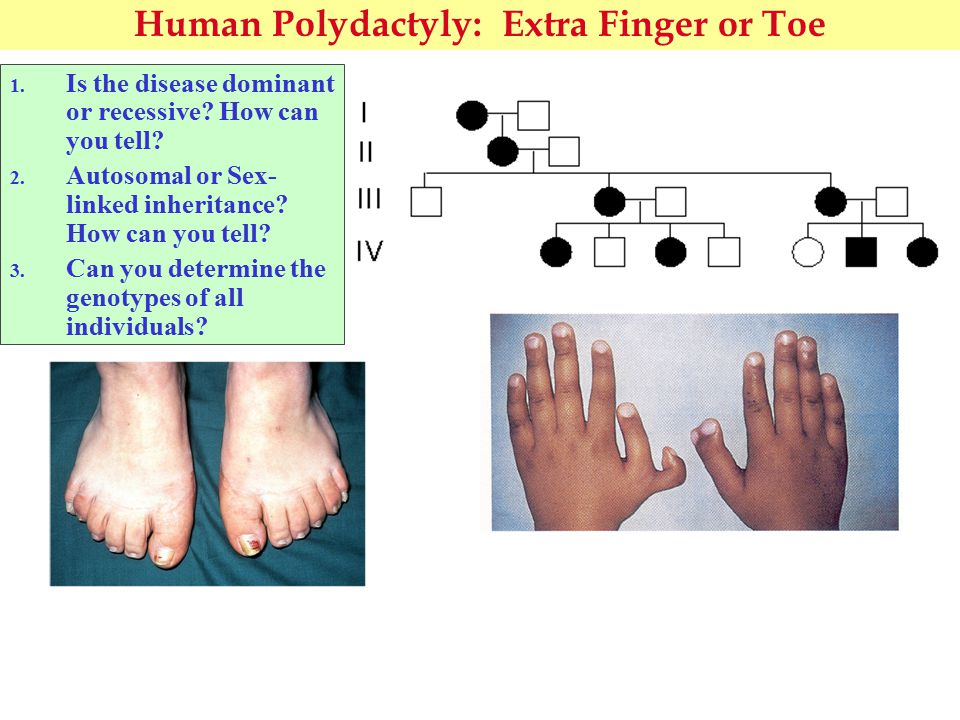 Human Polydactyly: Extra Finger or Toe 1. Is the disease dominant or recessive.