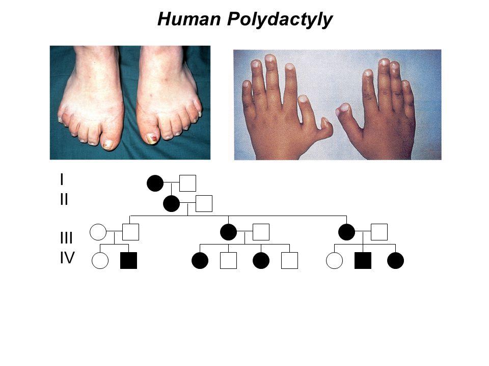 Human Polydactyly I II III IV