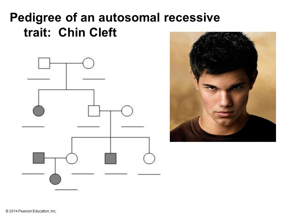 © 2014 Pearson Education, Inc. Pedigree of an autosomal recessive trait: Chin Cleft