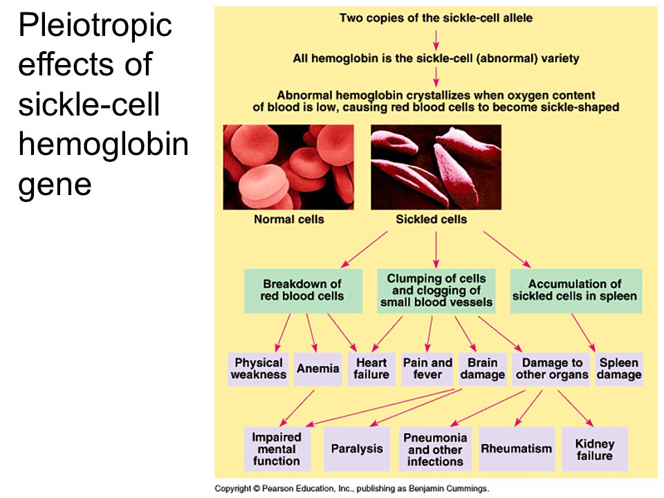 Pleiotropic effects of sickle-cell hemoglobin gene