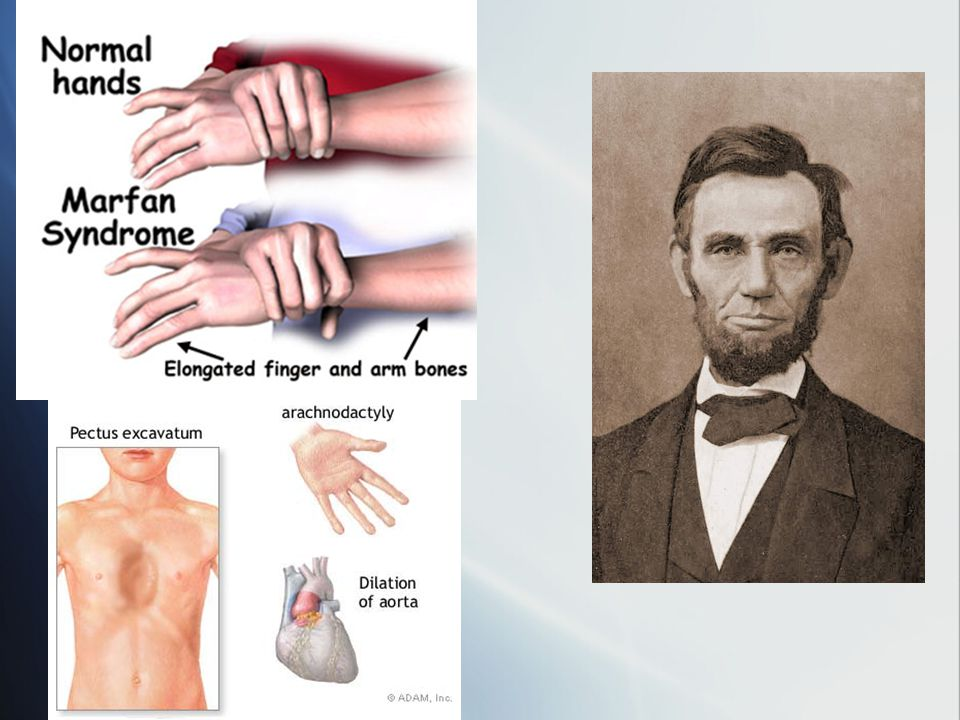 Marfan Syndrome Symptoms:Myopia, retinal detachment, bone overgrowth and loose joints, may have long thin arms and legs, bent chest inwards or outward