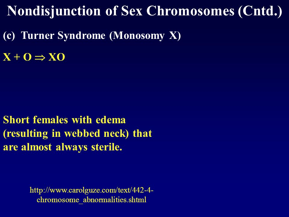 Nondisjunction of Sex Chromosomes (Cntd.) (c) Turner Syndrome (Monosomy X) X + O  XO Short females with edema (resulting in webbed neck) that are almost always sterile.