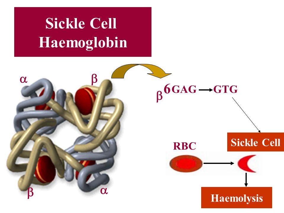 Sickle Cell Haemoglobin     GAG GTG RBC Haemolysis Sickle Cell 66