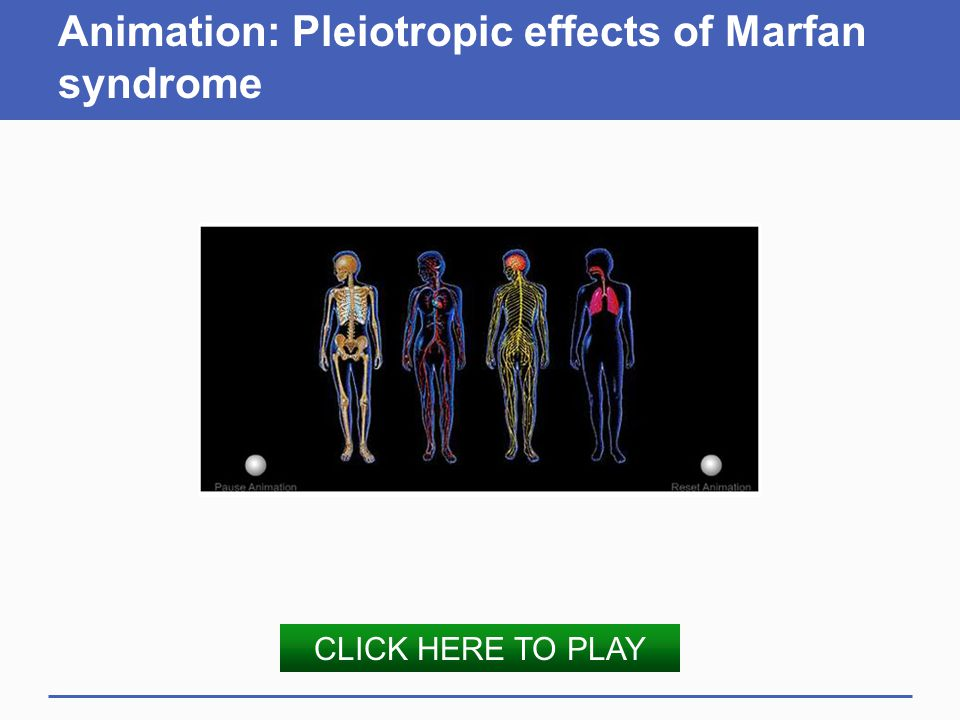 Animation: Pleiotropic effects of Marfan syndrome CLICK HERE TO PLAY