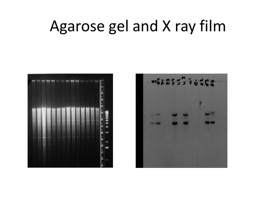 Agarose gel and X ray film
