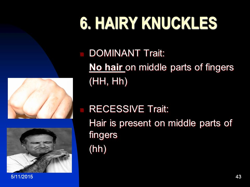 5/11/201543 6. HAIRY KNUCKLES DOMINANT Trait: DOMINANT Trait: No hair on middle parts of fingers (HH, Hh) RECESSIVE Trait: RECESSIVE Trait: Hair is pr