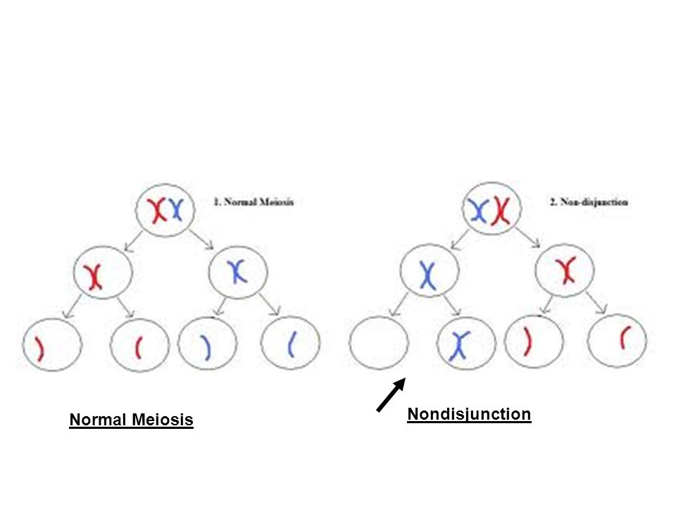 Normal Meiosis Nondisjunction