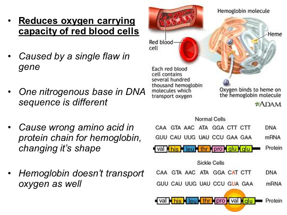 Reduces oxygen carrying capacity of red blood cells Caused by a single flaw in gene One nitrogenous base in DNA sequence is different Cause wrong amin