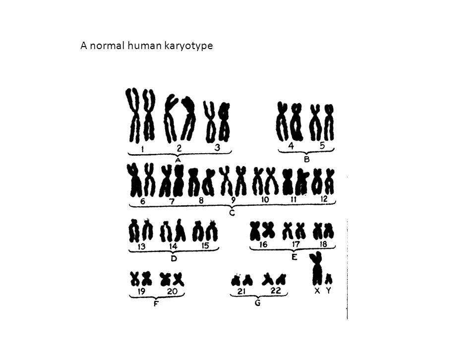 A normal human karyotype