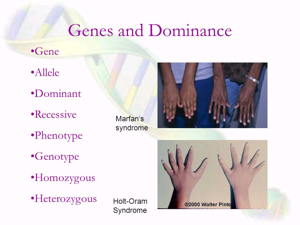 Genes and Dominance Gene Allele Dominant Recessive Phenotype Genotype Homozygous Heterozygous Holt-Oram Syndrome Marfan's syndrome