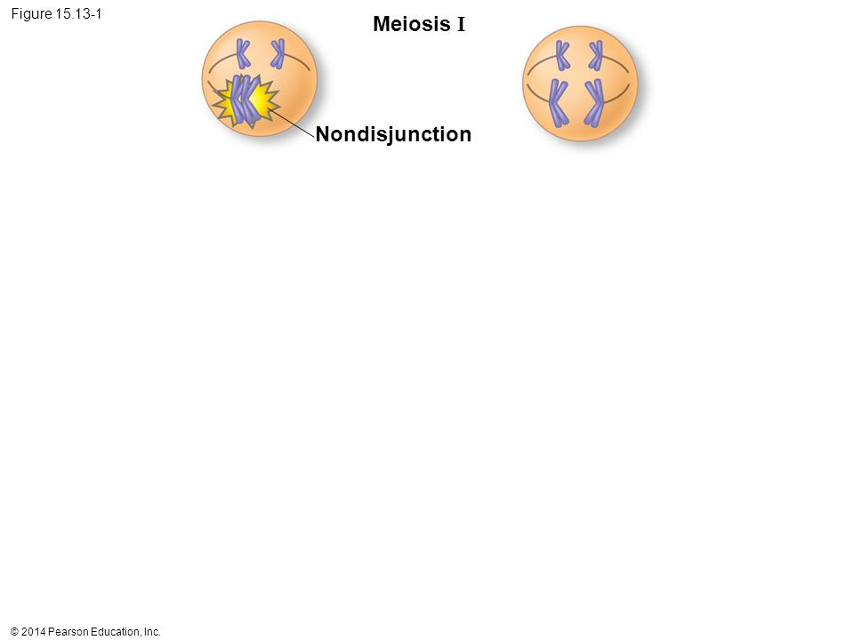 © 2014 Pearson Education, Inc. Figure 15.13-1 Meiosis I Nondisjunction