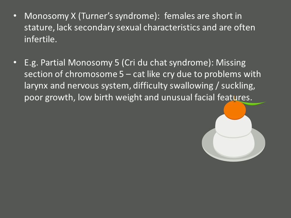 Monosomy X (Turner's syndrome): females are short in stature, lack secondary sexual characteristics and are often infertile.